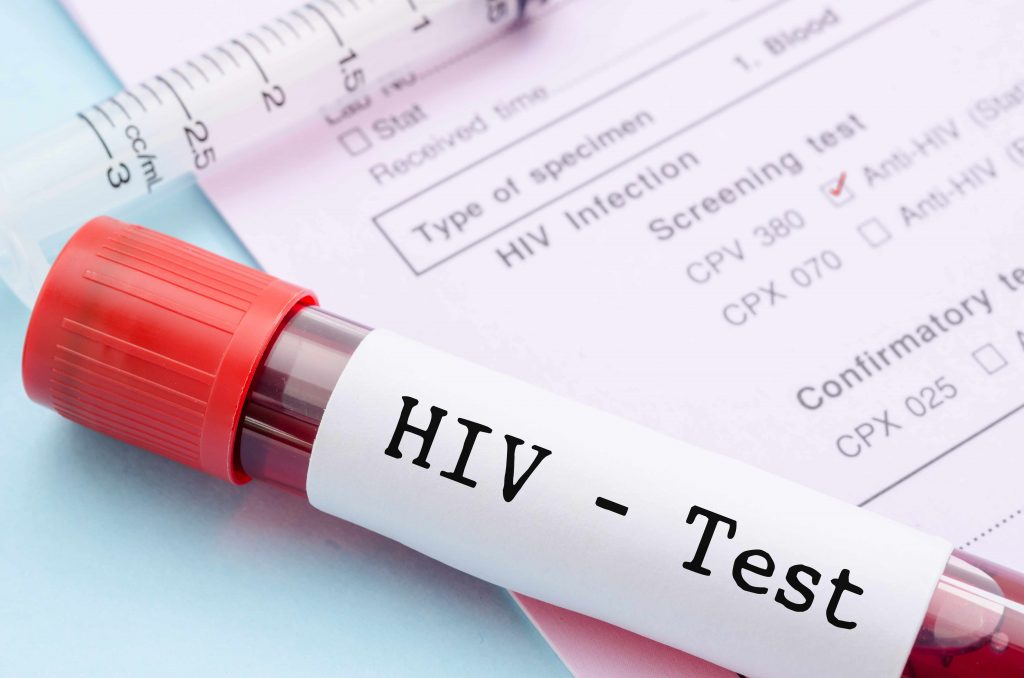 Taking the worry out of HIV testing